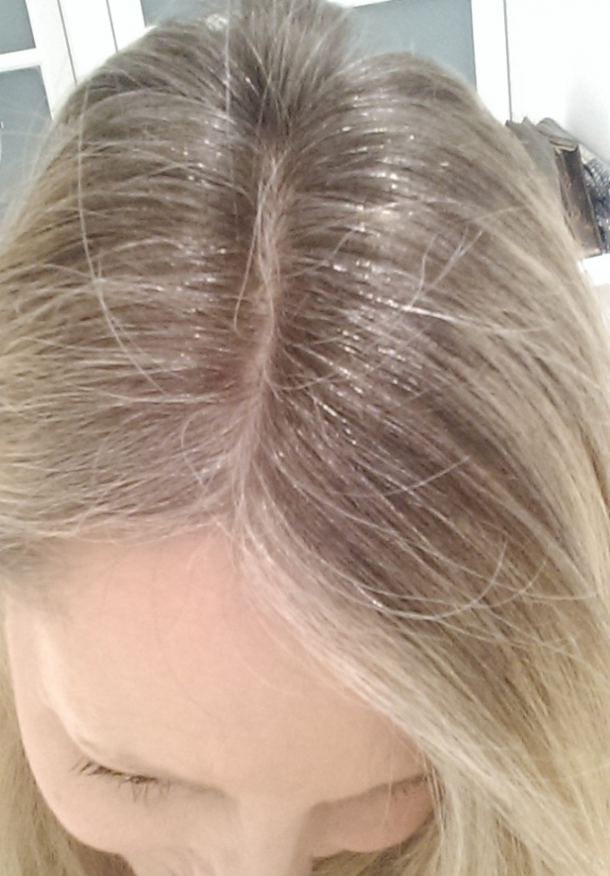 Overgang til gråt hår