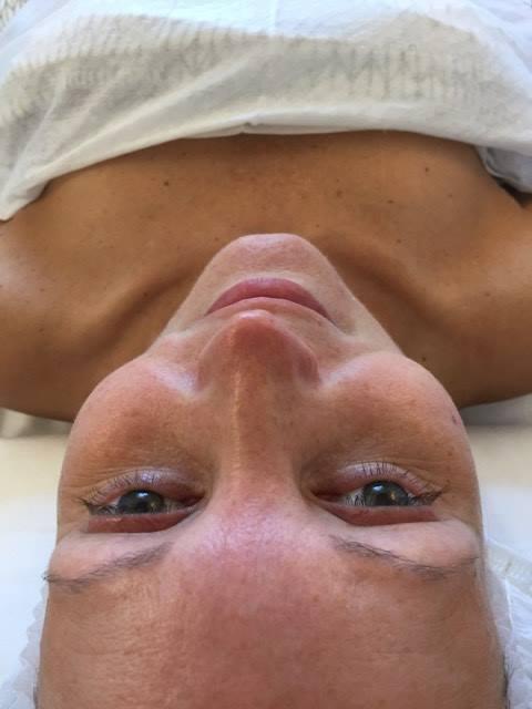 syrebehandling-foer-billede
