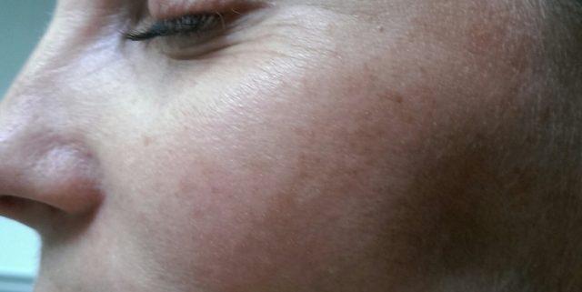 Avanceret MBR ansigtbehandling og hudpleje, der virker med det samme