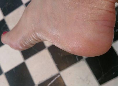 Førstehjælp til sandalfødderne