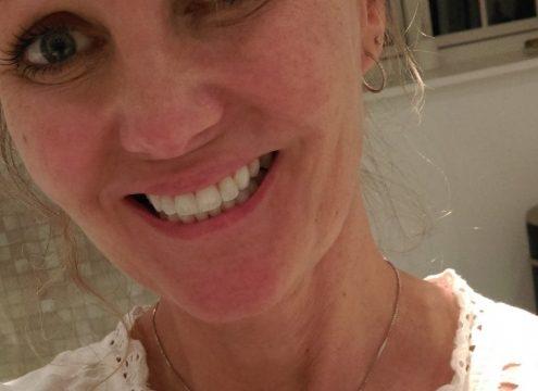 Sådan får jeg hvide tænder