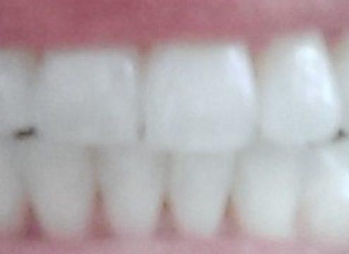 Vil du også gerne passe godt på dine tænder? Vind et års forbrug af Zendium