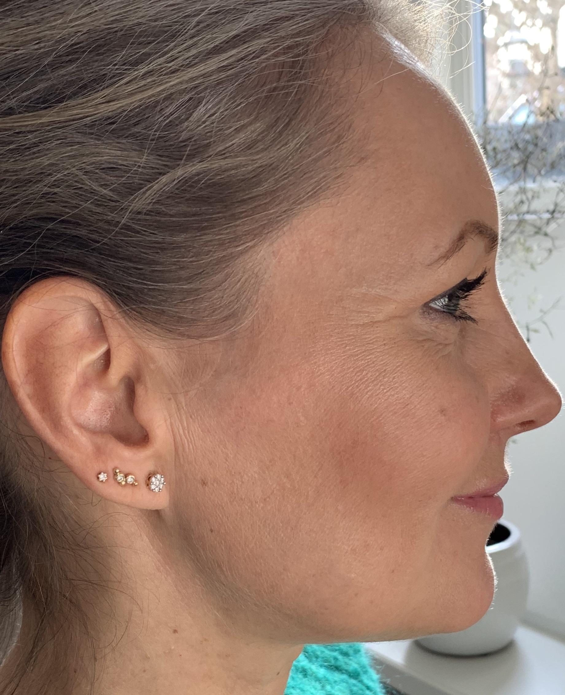 flere huller i øret
