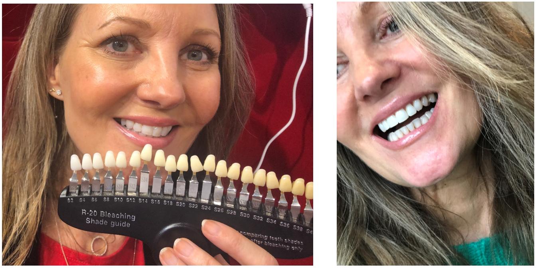 Før og efter professionel Pearlsmile tandblegning!