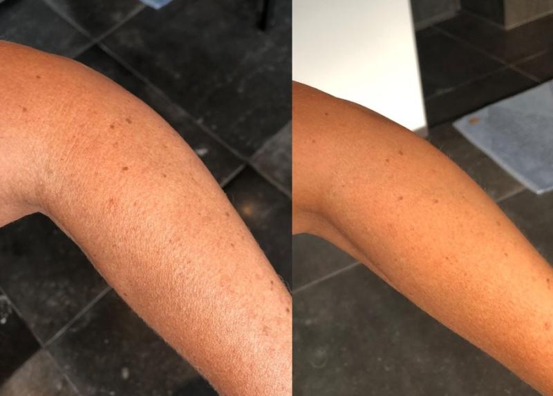 Vita Liberata selvbruner