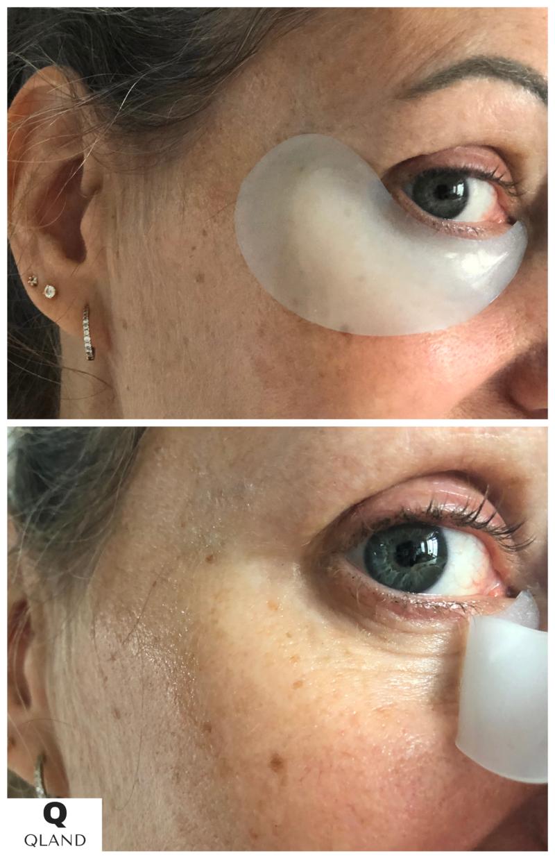 Øjenpatches fra Peter Thomas Roth giver dig øjeblikkeligt lysere og glattere øjenomgivelser