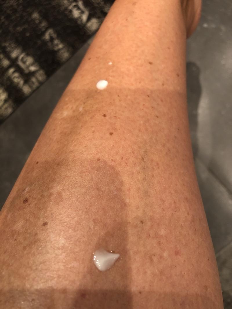 Jeg behandler pigmentpletterne på benene med C-vitamin serum fra Sunday Riley.